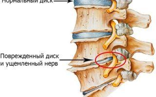 Боль в левом подреберье, ноющая, острая, тупая, колющая, тянущая боль в левом боку под ребрами сбоку, спереди, сзади – причины, лечение