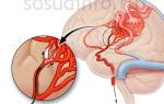 Артериовенозная мальформация сосудов головного мозга