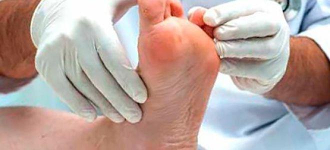 Эфирные масла от грибка ногтей на ногах: лучшие рецепты для лечения онихомикоза