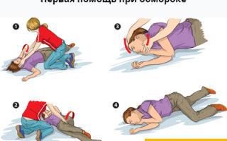 Обморок — причины, симптомы, лечение