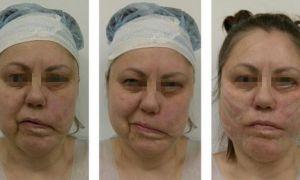 Асимметрия лица — причины, методы исправления у женщин