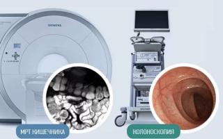 Делают ли мрт кишечника и прямой кишки, как происходит процедура, как подготовиться