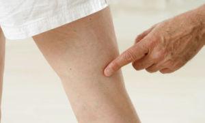 Гели от варикоза вен на ногах — обзор эффективных средств, отзывы