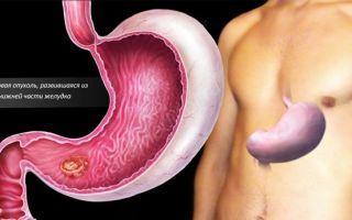 Где находится двенадцатиперстная кишка (с фото) и почему так называется, анатомия и функции, как болит
