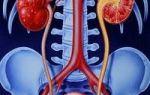 Синдромы и симптомы при остром пиелонефрите