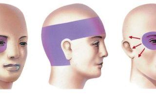 Головная боль отдает в ухо (уши): левое или виски