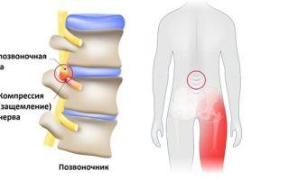 Воспаление седалищного нерва — симптомы и лечение защемления седалищного нерва