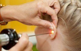 Отит среднего уха — симптомы и лечение у взрослых, как лечить воспаление уха при наружном, гнойном, остром и хроническом отите антибиотиками