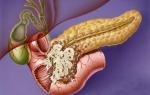 Как жить с хроническим панкреатитом – лечение и профилактика заболевания у взрослых