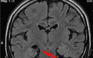 Эпилепсия лобной доли, лечение, причины, симптомы, профилактика.