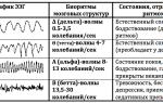 Ээг (энцефалограмма) головного мозга: что показывает, как делают электроэнцефалографию