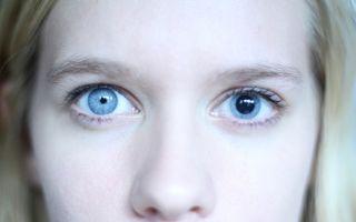 Один зрачок (один глаз) больше другого — причины у взрослых, лечение и профилактика