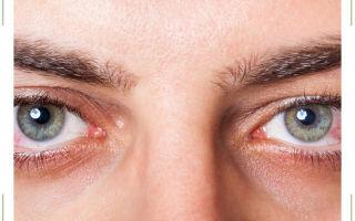 Вспышки в глазах — причины если сбоку, появляются белые пятна при моргании в темноте, огненные и яркие при закрытых, искры