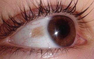 Желтое пятно глаза на белке — точка на зрачках, белое