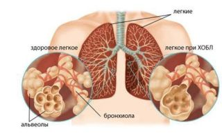 Пневмосклероз легких — что это такое? симптомы, диагностика, лечение