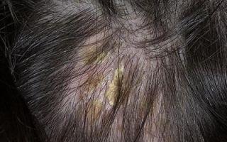Себорейный дерматит волосистой части головы — лечение себорейного дерматита на голове у взрослых