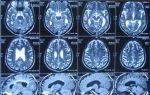 Ээг или мрт головного мозга: отличие, что лучше?