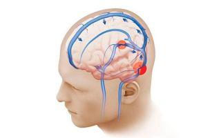 Венозная дисциркуляция: признаки и лечение дисфункции головного мозга