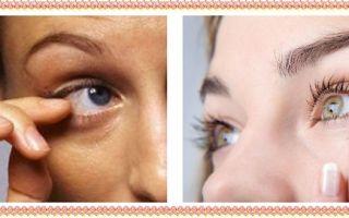 Дёргается глаз — причины, лечение и профилактика