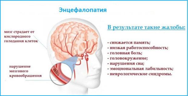 Острая гипертоническая энцефалопатия: симптомы, диагностика, лечение