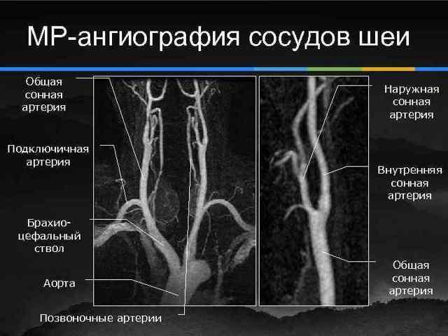 Ангиография сосудов головного мозга и артерий (церебральная), что это такое