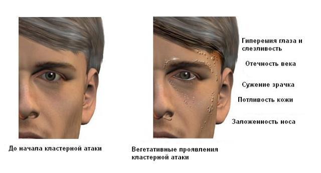 Боль над глазом в области брови, лба