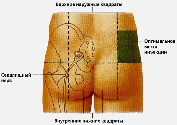 Лечение седалищного нерва: лекарства, уколы при защемлении