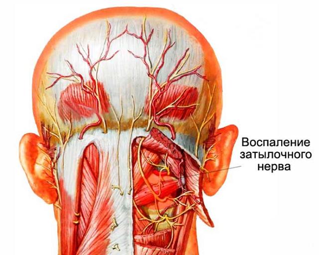 Боль в затылочной части головы - что делать