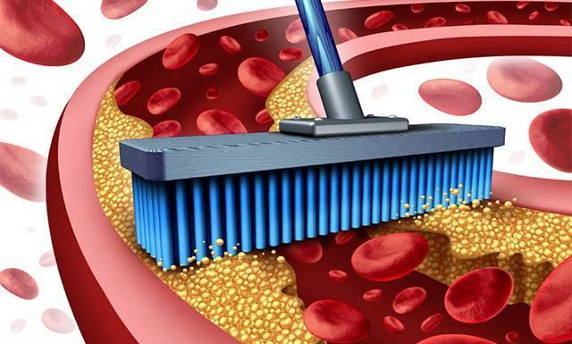 Как очистить сосуды от холестерина и бляшек в домашних условиях