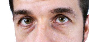 Темные круги и синяки под глазами: главные причины появления