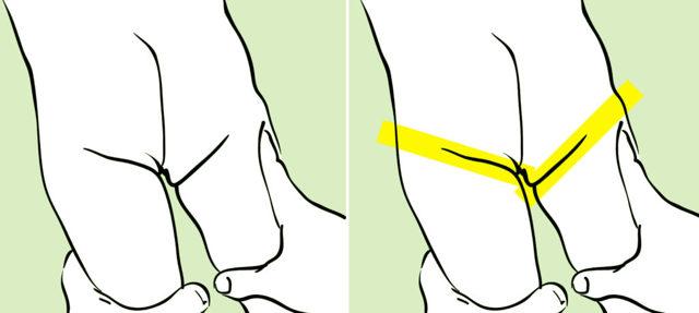 Дисплазия тазобедренных суставов код мкб