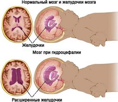 Увеличение желудочков головного мозга у новорожденных