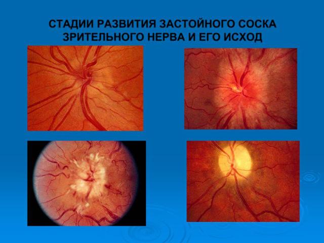 Неврит зрительного нерва: симптомы и лечение воспаления глазного