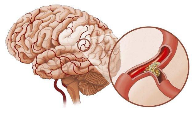 Какие бывают виды инсультов - отличия двух типов: разновидности и их последствия для головного мозга