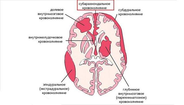 Субарахноидальное кровоизлияние в мозг: последствия, симптомы и лечение