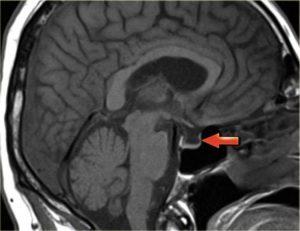 Турецкое седло мозга человека