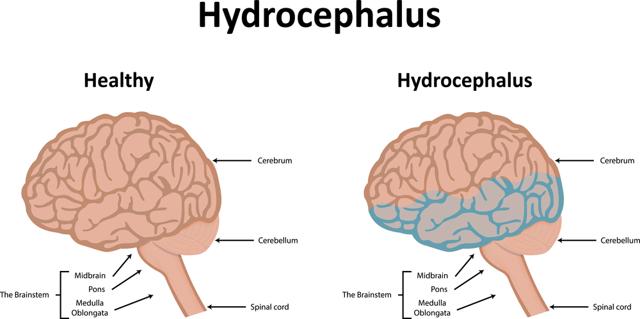 Гидроцефалия (водянка) головного мозга у взрослого: лечение