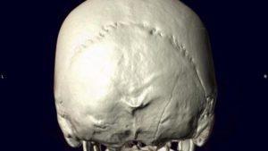 Лучевая диагностика перелома мыщелка затылочной кости