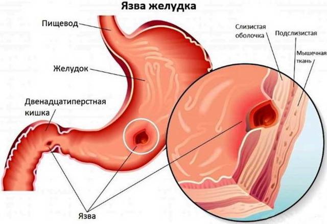 Может ли от остеохондроза болеть желудок