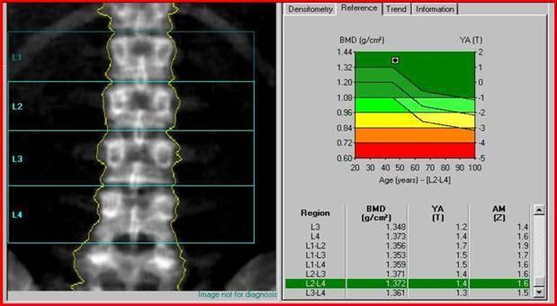 Субхондральный Склероз замыкательных пластинок позвоночника - что это такое