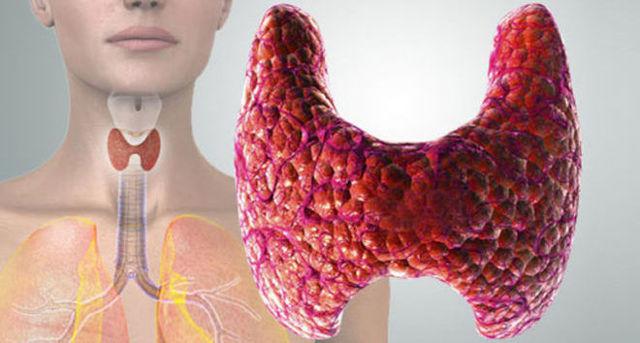 Жжение в шее, что это может быть?Может ли болеть щитовидная железа у мужчин и женщин