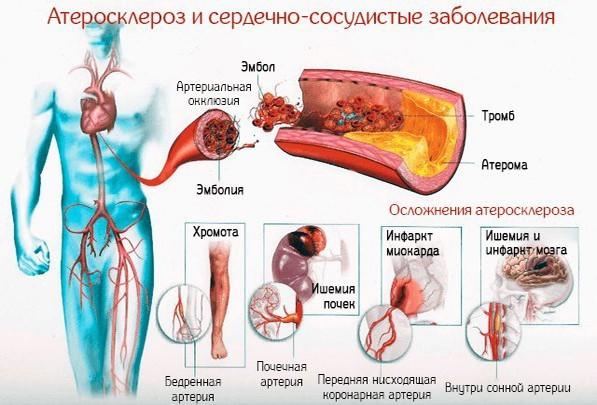Мультифокальный атеросклероз: что это такое, лечение патологии