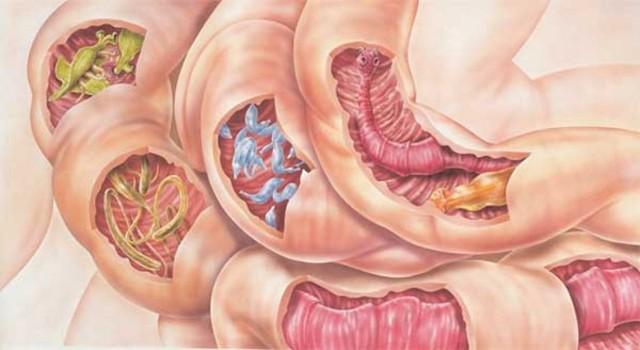 Урчание в животе, причины и лечение: почему бурлит после еды