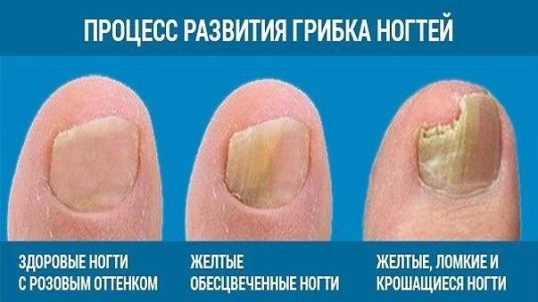 Лак от грибка ногтей: как выбрать недорогой и эффективный