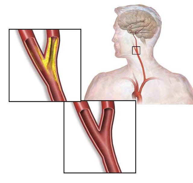 Атеросклероз БЦА: что это такое, симптомы и лечение