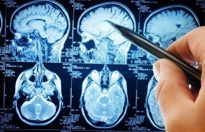 Кисти головного мозга у новорожденного: симптомы и лечение кистевых сосудистых сплетений и псевдокист, последствия и причины у грудничков