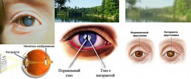 Капли для глаз при глаукоме - полный список с инструкциями, отзывы и цены на препараты