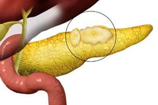 Диффузные изменения поджелудочной железы: признаки и лечение