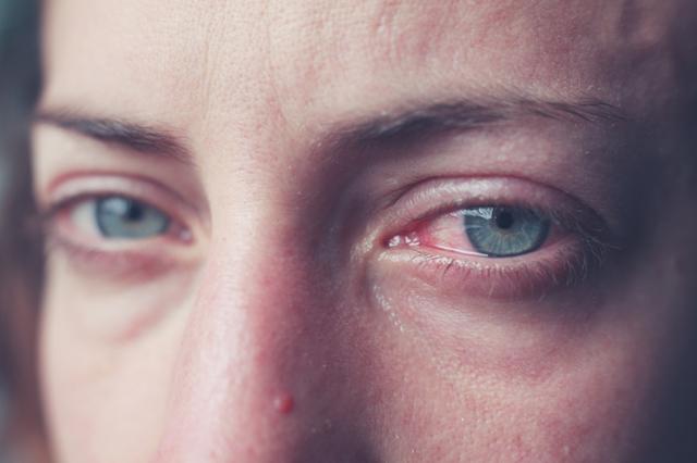 Резь в глазах: возможные причины, профилактика и лечение