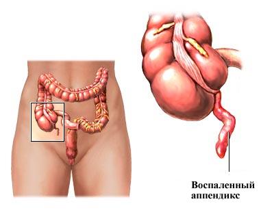 Аппендицит - причины, симптомы, диагностика и лечение